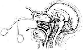 La cirugía mínimamente invasiva. Jules Hardy