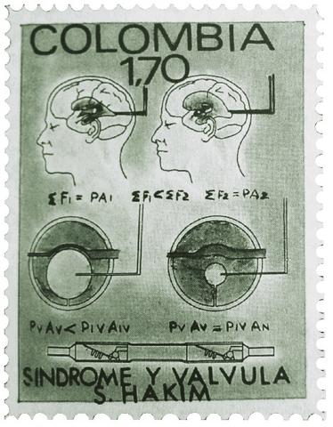 Válvulas para tratar la hidrocefalia. Derivaciones