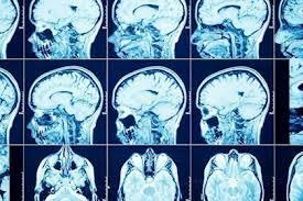 Creación de Imágenes Cerebrales
