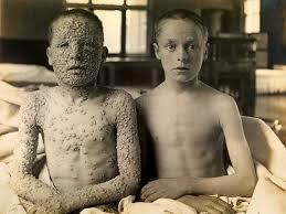 Estabelecida a imunização compulsória das crianças contra a varíola