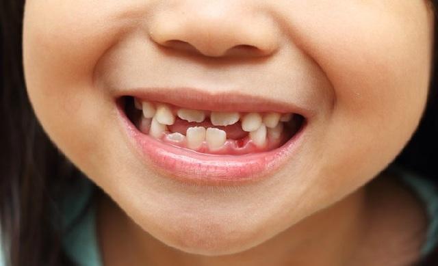 El meu primer dent definitiu.