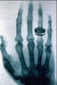 La primera radiografía