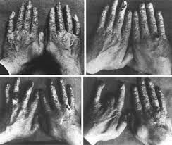 Clarence Dally muere debido a la exposición a la radiación