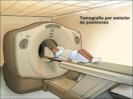 Escáner de tomografía