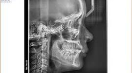 Descubrimiento de los rayos X timeline