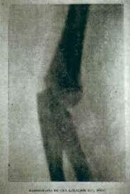 Primer uso de la radiografía en México