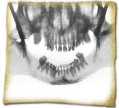 Primera Radiografía Dental