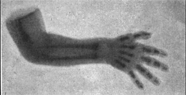 Radiografía de un brazo fracturado