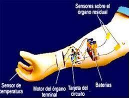 Prótesis mioeléctrica.