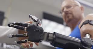 El implante de mano