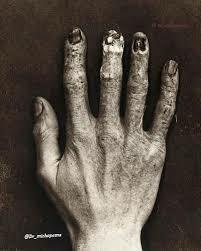 Claurence Dally muere debido a la exposición a la radiación.