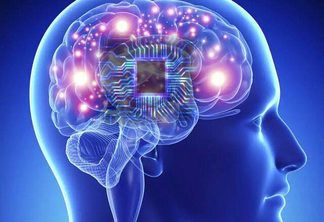 Implantes del cerebro