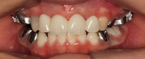 Problemas en los dientes (Pasado)