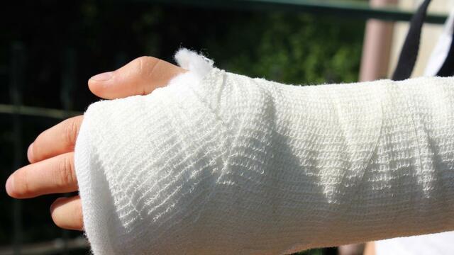 Operació al braç
