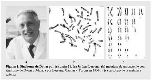Primeras aberraciones cromosómicas en el hombre