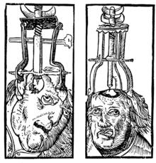 Primers tractaments mèdics ( 3000 a.C.)
