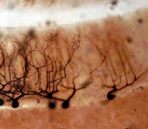 Golgi Developed The Black Reaction