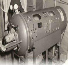 Se introduce el Primer Pulmón de Acero