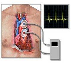 El Monitor Holter