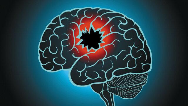 Conrad, lesiones en lo hemisferios cerebrales