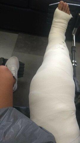 Me lesioné la rodilla en un partido