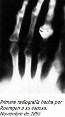 Descubrimiento de la radiologia