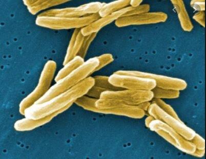 LA TEORÍA MICROBIANA