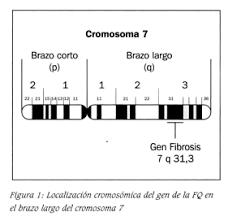 Secuenciación del análisis de ligamiento del virus VIH-1 del gen de la fibrosis quística