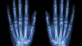 Radiación electromagnética en la medicina  timeline