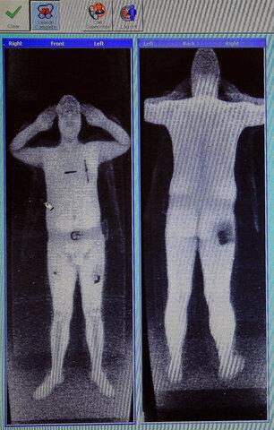 Invencion de equipos de rayos X