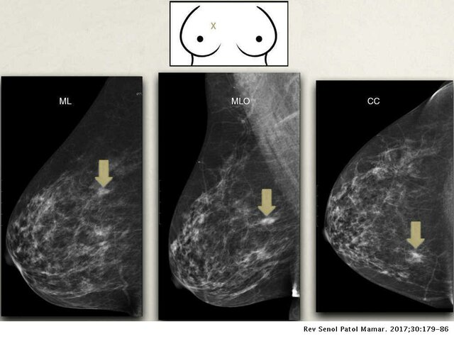 Foto Mamográfica (2000)