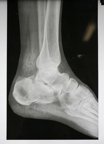 Wilhelm Roentgen discovers X-rays
