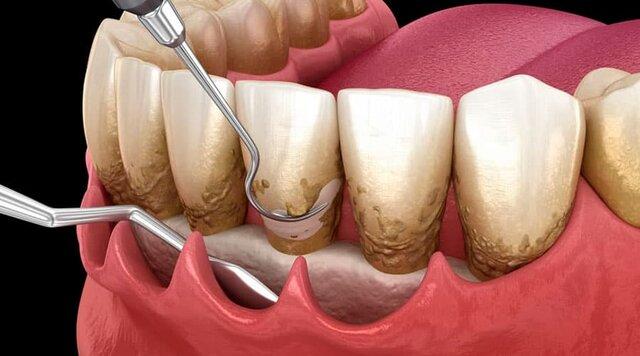 Merritt, Resalta que el error real de la enfermedad periodontal fue pensar que el tratamiento era terapéutico en lugar de quirúrgico.