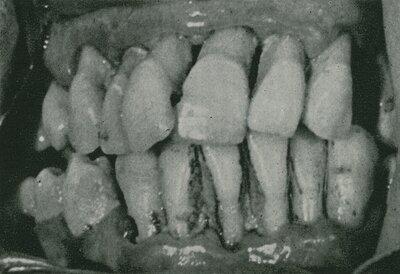 John Oppie McCall, Se acordó el término de PERIODONTOCLASIA para designar a la enfermedad. Y PERIODONTOLOGÍA: para la rama de la odontología que trata las enfermedades de los tejidos de soporte del diente.