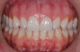 A.A.P. Guidelines for Periodontal Therapy