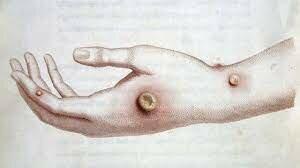 Creación de una Vacuna (viruela)