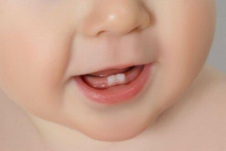 Em surt la primera dent