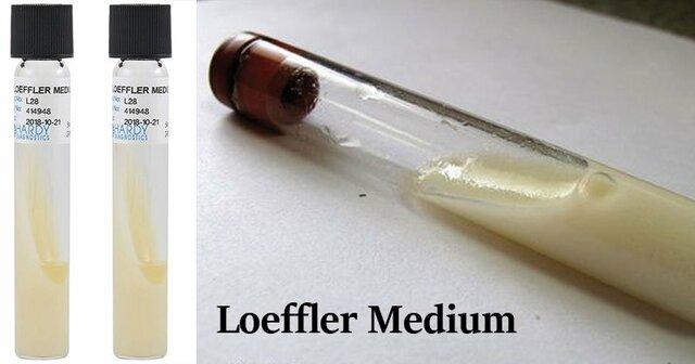 Caldo nutritivo Loeffler