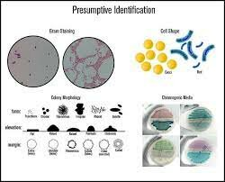 Microbe Identification