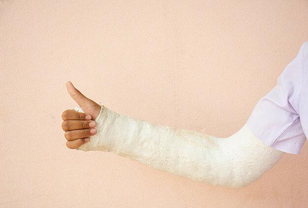 Em vaig trencar el braç