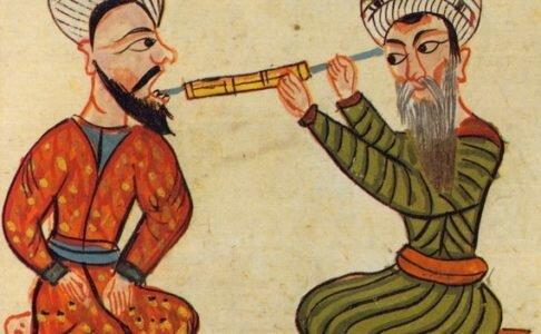 Aristóteles escribió sobre extracciones y fracturas dentales.