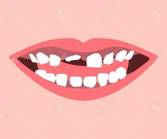 Em va caure la primera dent