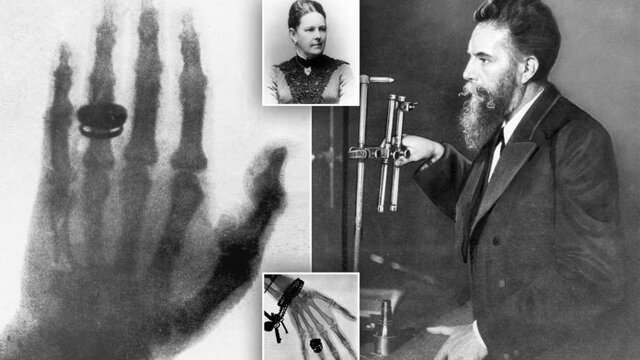 Wilhelm Roentgen descubre los rayos X y y su capacidad para ver huesos y tejidos duros dentro del cuerpo.