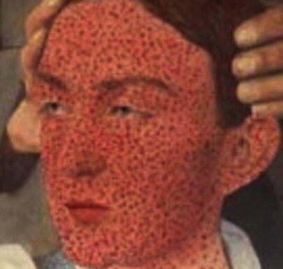Identification of smallpox