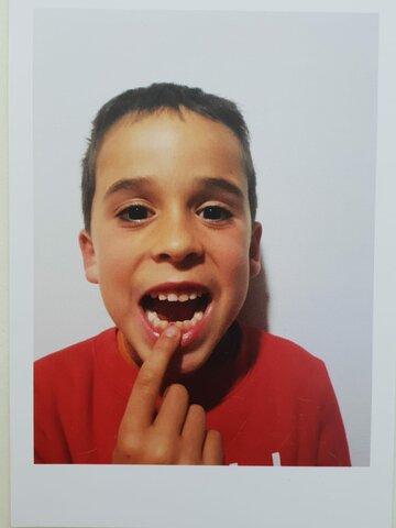 Em cau la primera dent