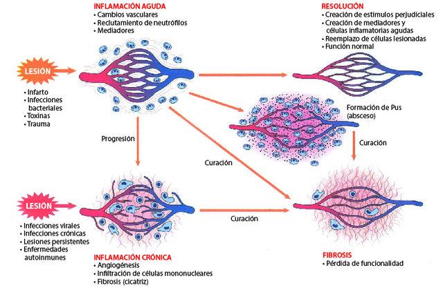 crónica  no proliferativa