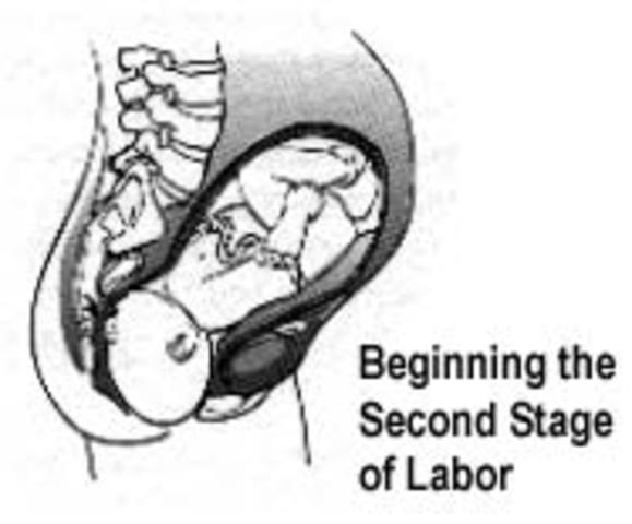 Second Stage of Labor: Crowning