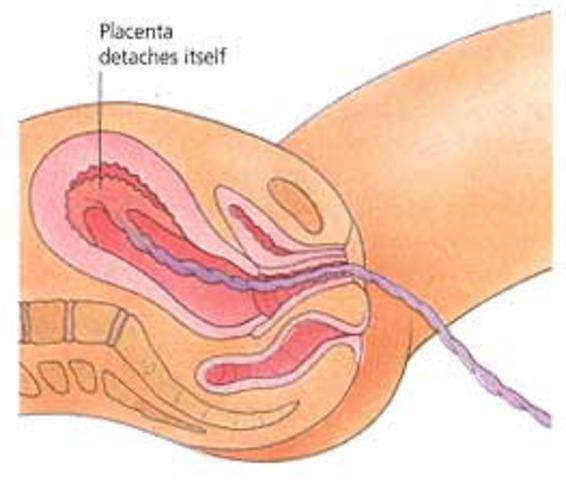 Delivering the Placenta