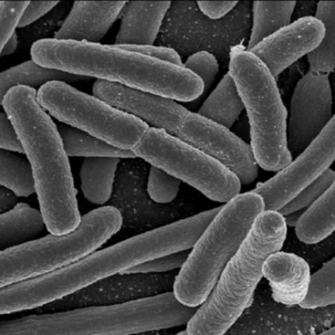 Boyer E. coli