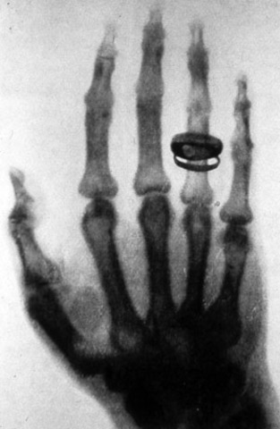 Birth of the X-ray